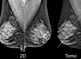 Hologic Total Breast Tomosynthesis Mammography Systems Women's Health