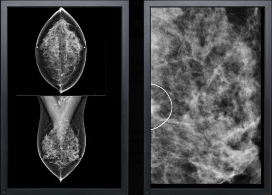 VuComp M-Vu CAD Version 3 Computer-Aided Detection Breast Cancer Women's Health