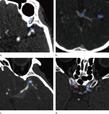 Images show examples of false-positive aneurysms, including (a) bony structures and vessel bifurcation, (b) veins, (c) vessel curvatures, and (d) calcified plaques. Red box (d) indicates aneurysms annotated by radiologists, and the blue boxes indicate aneurysm candidates provided by the algorithm. Images courtesy of the Radiological Society of North America