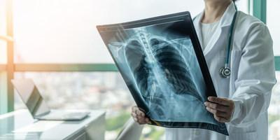 A new artificial intelligence (AI) algorithm can identify when medical images are likely to be difficult for either a radiologist or AI to make an effective diagnosis.