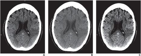 Mobile devices proved both reliable and accurate for the clinical decision to administer IV thrombolysis in patients with acute stroke