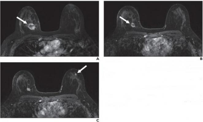 A, Contrast-enhanced axial T1-weighted fat-saturated image from baseline MRI before initiation of neoadjuvant therapy shows irregular mass (arrow) in upper inner right breast corresponding to biopsy-proven carcinoma. B, Contrast-enhanced axial T1-weighted fat-saturated image from follow-up MRI performed 3 months after initiation of neoadjuvant therapy shows decrease in size of right breast cancer (arrow). C, Contrast-enhanced axial T1-weighted fat-saturated image 3 months after initiation of neoadjuvant the
