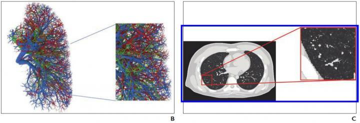 B, Representative computational model shows lung stroma intraorgan structure of XCAT phantom that was developed using anatomically informed mathematic model. Inset shows enlarged view for better visibility of details and small structures. C, Voxelized rendition (ground truth) of XCAT phantom highlights detailed model of lung parenchyma. Inset shows enlarged view for better visibility of details and small structures