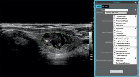 Automated Triage of Thyroid Cancer