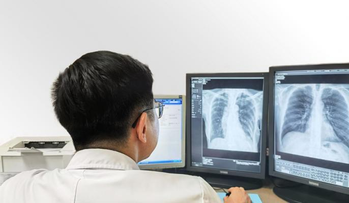 A doctor reading #CXR scans using #SenseCare-Chest #DR Pro #diagnostic #software.