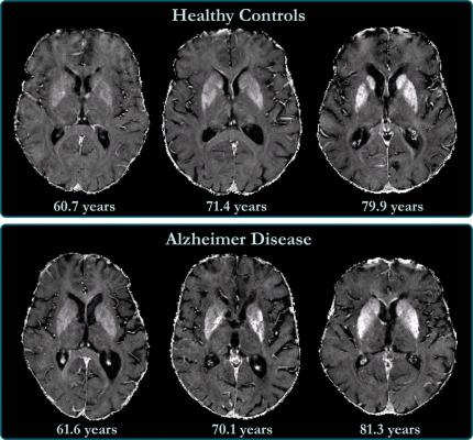 R2*maps of healthy control participants and participants with Alzheimer disease. R2*maps are windowed between 10 and 50 sec21. Differences in iron concentration in basal ganglia are too small to allow visual separation between patients with Alzheimer disease and control participants, and iron levels strongly depend on anatomic structure and subject age. Image courtesy ofRadiological Society of North America