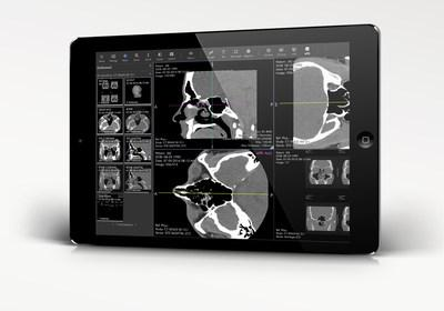 Ambra Healthannounced the launch ofAmbra ProViewer, the company's next generation cloud-based diagnostic image viewer built for today's needs. ProViewer joins Ambra Health's revamped suite of imaging tools and enables advanced anytime, anywhere access to medical imaging.