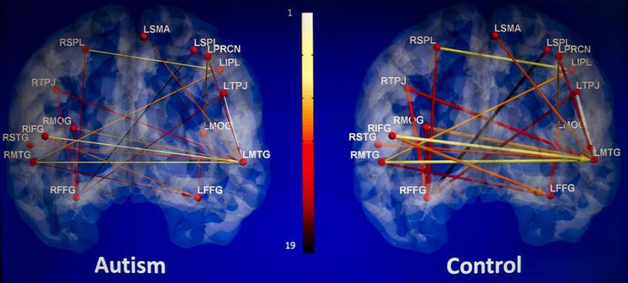 mri systems clinical trials study university alabama auburn psychology autism