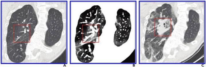 A, Initial conventional axial CT image shows no noticeable lung damage (within red box) in right upper lobe. B, Electron density spectral CT image obtained at same time as image in A shows lesions (within red box) in right upper lobe. C, Follow-up conventional axial chest CT image obtained 5 days after images in A and B confirm presence of lesions (within red box) in right upper lobe.