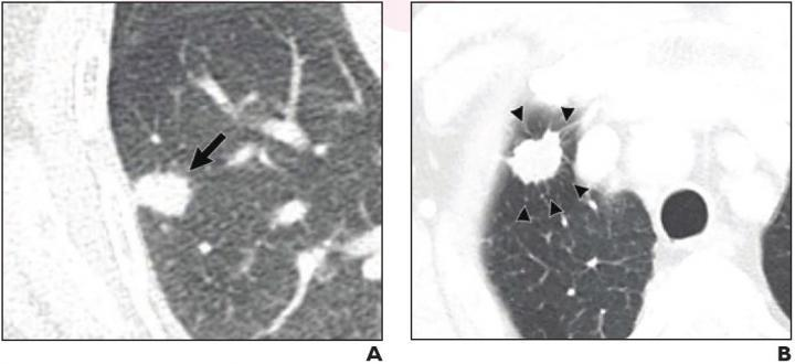 (A) 70-year-old woman with pulmonary adenocarcinoma who underwent sublobar resection without evidence for pLVI. 15-mm solid nodule with irregular margins present in right lower lobe (arrow). No tumor recurrence on 37-month follow-up. (B) 75-year-old man with pulmonary adenocarcinoma who underwent wedge resection that exhibited pLVI. 19-mm solid nodule with irregular margins and peritumoral interstitial thickening (arrowheads) present in right upper lobe. Ipsilateral mediastinal and hilar lymph node metastas