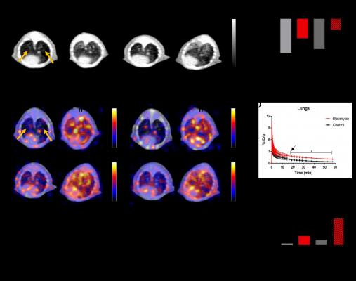 Positron emission tomography (PET) using a 68Ga-labeled fibroblast activation protein inhibitor (FAPI) can noninvasively identify and monitor pulmonary fibrosis, according to research presented at the Society of Nuclear Medicine and Molecular Imaging 2021 Annual Meeting.