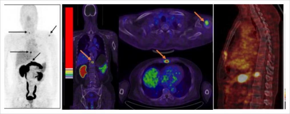 axumin pet scan