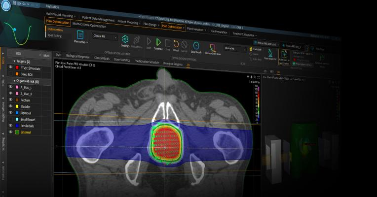 Researchers Identify Ways to Predict and Avoid Radiotherapy Side Effects