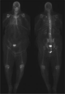 Navidea, Manocept, CD206 receptor, rheumatoid arthritis