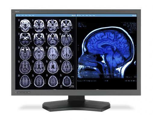 Brainreader, Neuroreader, brain volume changes, degenerative brain diseases, early diagnosis