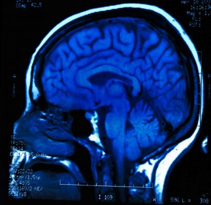 fMRI, IOS, intrinsic optical signals, cerebral function, UNIGE, Cell Reports