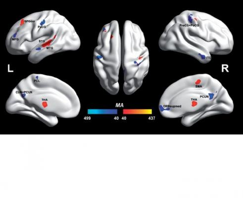 autism, fMRI, University of Warwick, voxels, BWAS