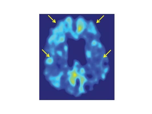 New PET Image Analysis Technique Tracks Amyloid Changes With Greater Power