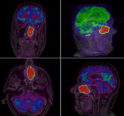 Blue Earth Diagnostics, fluciclovine, 18F, orphan drug designation, PET