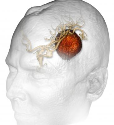 ASTRO, stereotactic radiosurgery, brain metastases, 50 years old and younger