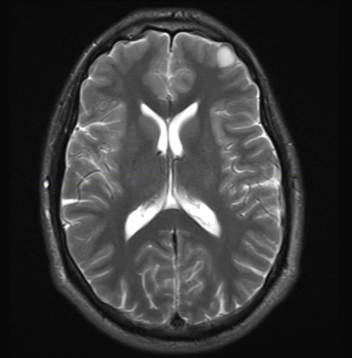 radiation exposure triggers an immune response in the brain that severs connections between nerve cells