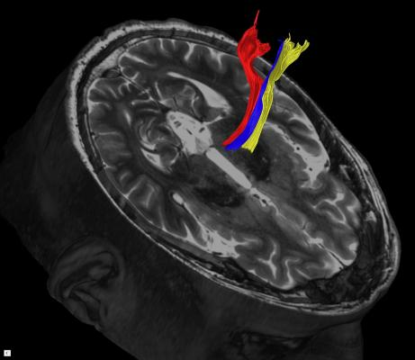 Diffusion tractography uses the movement of water molecules to identify tracts that connect different parts of the brain. It can be used to pinpoint the part of the thalamus to treat with focused ultrasound. Image courtesy of UT Southwestern Medical Center