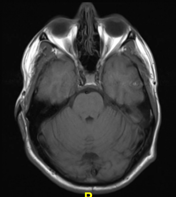 Two recently studies released at RSNA19 use MRI to illuminate abnormalities in the brain of people with depression