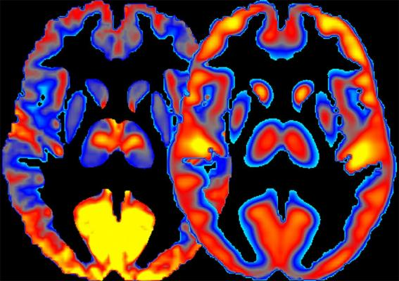NIH Study of Brain Energy Patterns Provides New Insights into Alcohol Effects