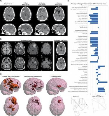 This illustration show the complexity of the data obtained from one single patient with moderate/severe traumatic brain injury. Different imaging approaches and techniques have their own unique sensitivity in assessing different aspects of neuroanatomy and neuropathology. What can be seen on images also changes with time since injury. Data from comprehensive clinical and functional assessments using a range of other tools is also important for evaluating patient outcome. Through data harmonization and large