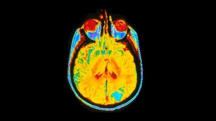 A single image of a human brain using a magnetic resonance imaging (MRI) machine. Image courtesy of Dr Leon Kaufman. University Of California, San Francisco