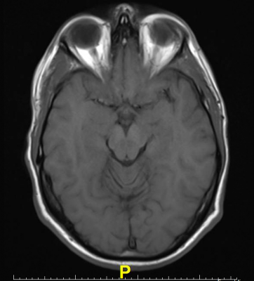 Oxford University Research Brain MRI Resting-state fMRI Parkinson's