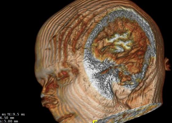 MRI, blood brain barrier, BBB, Alzheimer's, Radiology journal