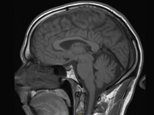 Guerbet Announces Plans to Streamline Contrast Media Portfolio, gadolinium MRI contrast