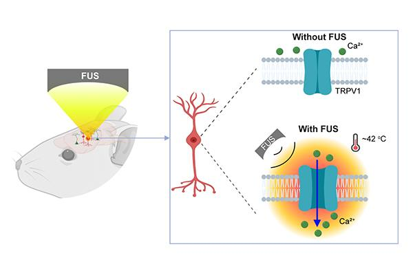 A multidisciplinary team at Washington University in St. Louis has developed a new brain stimulation technique using focused ultrasound that is able to turn specific types of neurons in the brain on and off and precisely control motor activity without surgical device implantation.