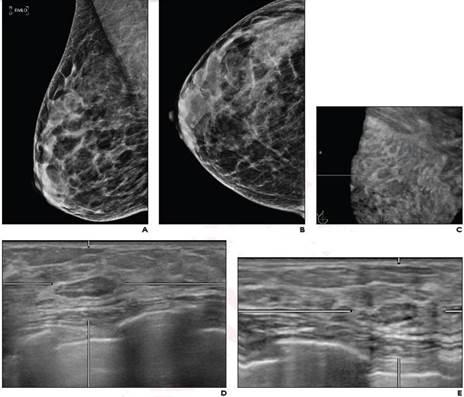 According to ARRS' American Journal of Roentgenology (AJR), return to routine screening for BI-RADS 3 lesions on supplemental automated whole-breast US (ABUS) substantially reduces the recall rate, while being unlikely to result in adverse outcome
