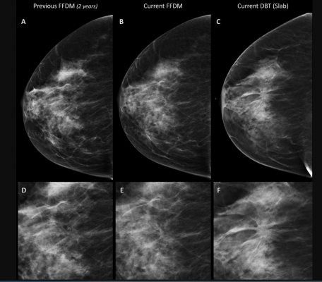 Breast Tomosynthesis Increases Cancer Detection Over Digital