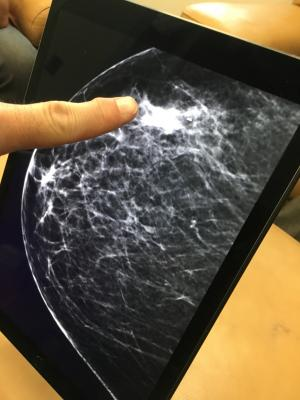 Researchers at Karolinska Institutet and Karolinska University Hospital in Sweden have compared the ability of three different artificial intelligence (AI) algorithms to identify breast cancer based on previously taken mammograms. The best algorithm proved to be as accurate as the average radiologist.