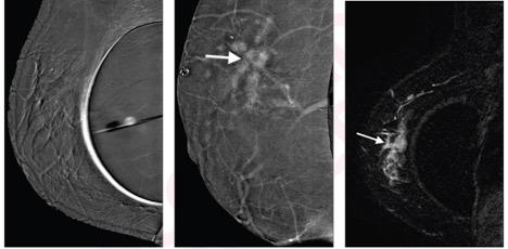 Left to right: Subtraction right mediolateral oblique (MLO) CEM was non-diagnostic because of artifact, potentially due to motion misregistration from extended exposure time; subtraction right MLO implant displaced CEM image shows 5.8 cm enhancing mass (arrow); contrast-enhanced MRI sagittal subtraction image shows concordant mass (arrow).