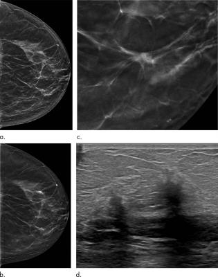 Tomosynthesis Outperforms Digital Mammography In Five Year Study