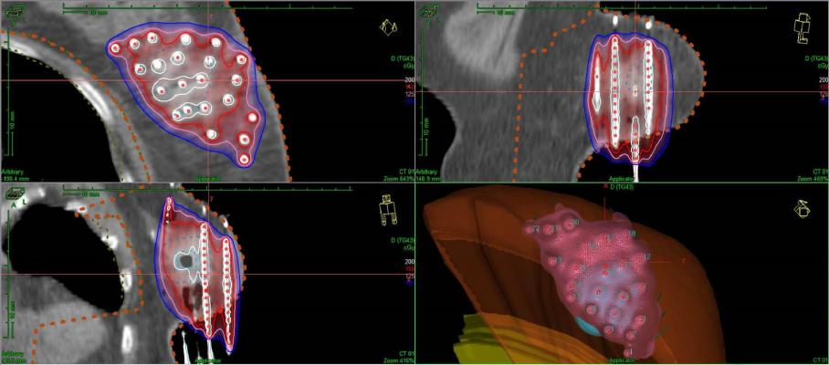 Breast brachytherapy, partial breast irratiation