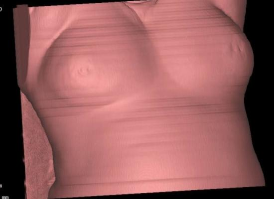 New study examines use of breast tomosynthesis. Marilyn Fornell