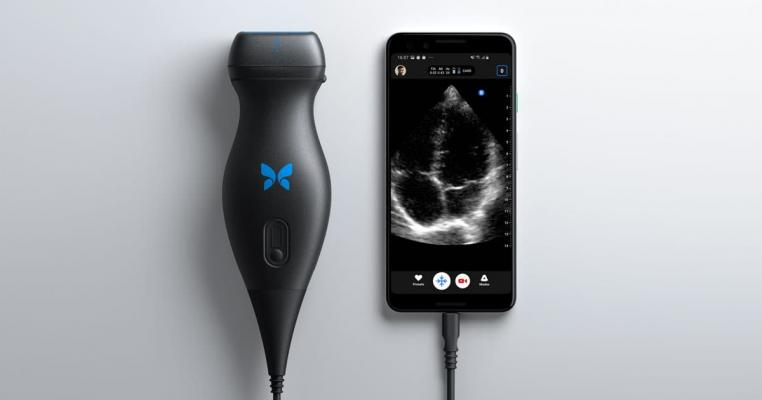 Butterfly iQ devices provide revolutionary portable ultrasound capabilities for faster and easier screening and monitoring