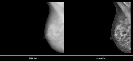 rsna 2013 mammography systems women's health contextvision gopview mammo2