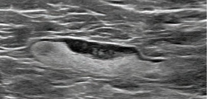 55-year-old woman who underwent screening mammogram and ultrasound 7 days after first COVID-19 vaccination dose.Screening mammogram and US demonstrated unilateral left axillary lymph node with cortical thickness of 5 mm on ultrasound (not shown). BI-RADS category 0 was assigned. Ultrasound from diagnostic work-up performed 7 days later showed no change in lymph node size. BI-RADS 3 was assigned. #COVIDvaccine #COVID19