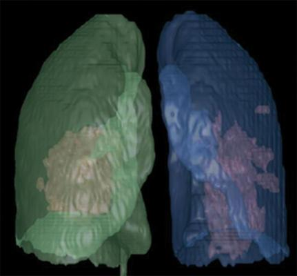 Artificial intelligence (AI)-assisted software was used to identify inflammatory tissues in lung and automatically segment inflammatory lesions. Three-dimensional image shows regions of COVID-19 pneumonia in lung through AI postprocessing. Image courtesy of the American Journal of Roentgenology (AJR)
