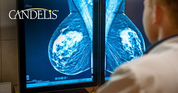 Candelis, Inc. recently launched the Advanced Breast Imaging Workstation as an enhancement to its ImageGrid platform