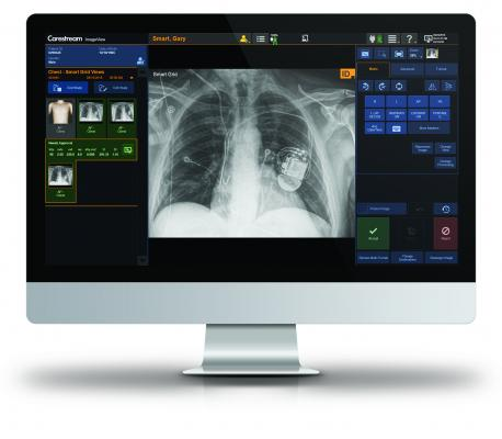 Carestream Health will highlight its advanced capabilities in bedside and DR room imaging solutions — with the DRX-Revolution Mobile X-ray System, DRX-Compass X-ray System and the DRX-Evolution Plus — at the upcoming virtual Radiological Society of North America (RSNA) conference.