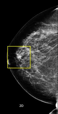 Hologic Showcases 3-D Mammography, Advanced Imaging Technologies at RSNA 2012
