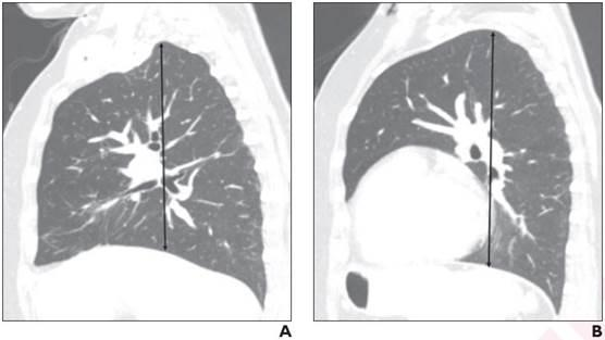 62-Year-Old Woman Who Underwent Hysterectomy for Uterine Cancer:Sagittal chest CT images demonstrate measurement of right (A) and left (B) lung length at hilar level from apex to diaphragmatic dome. Right lung length was 20.1 cm for reader 1 and 20.0 cm for reader 2; left lung length was 21.7 cm for reader 1 and 21.3 cm for reader 2. Patient did not require postoperative mechanical ventilation.