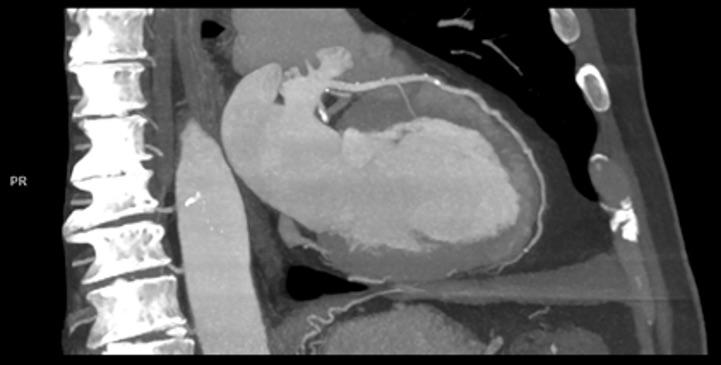 New ESC Guideline Provides Class 1 Recommendation for Coronary CTA